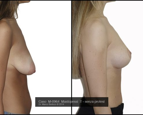 lifting-seno-senza-protesi-M0964L-495x400 GALLERY MASTOPLASTICA ADDITIVA