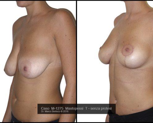 masopessi-senza-protesi-roma-M1275--495x400 GALLERY MASTOPLASTICA ADDITIVA