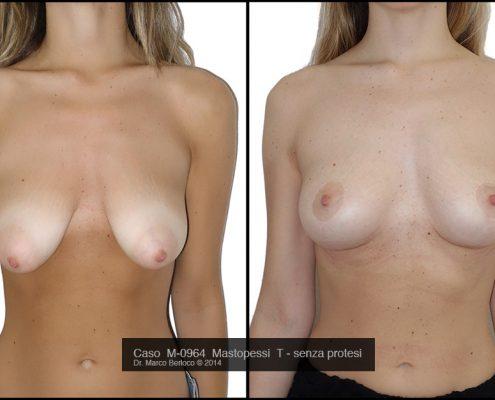 mastopessi-senza-protesi-roma-M0964-1-495x400 GALLERY MASTOPLASTICA ADDITIVA