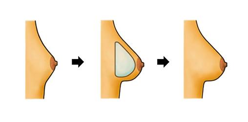 profilo-protesi-anatomiche-x Le Protesi Seno