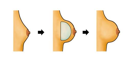 profilo-protesi-tonde-x Le Protesi Seno